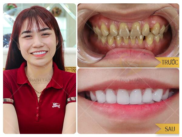 Thẩm mỹ răng sứ