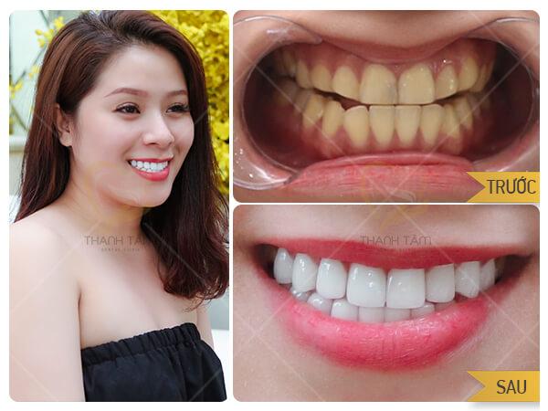 Khách hàng thực hiện thẩm mỹ răng sứ