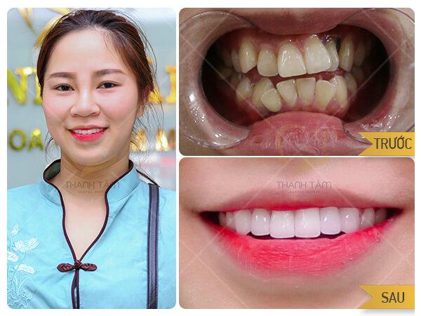 Khách hàng sử dụng dịch vụ răng sứ thẩm mỹ