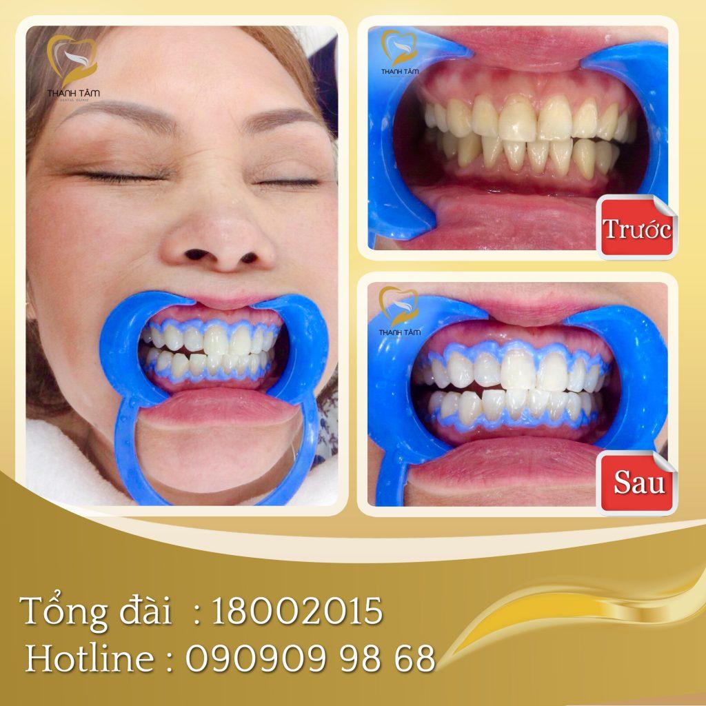 Khách trước và sau khi tẩy trắng răng