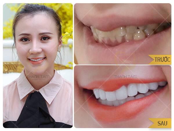 Bọc răng sứ bảo hành như thế nào