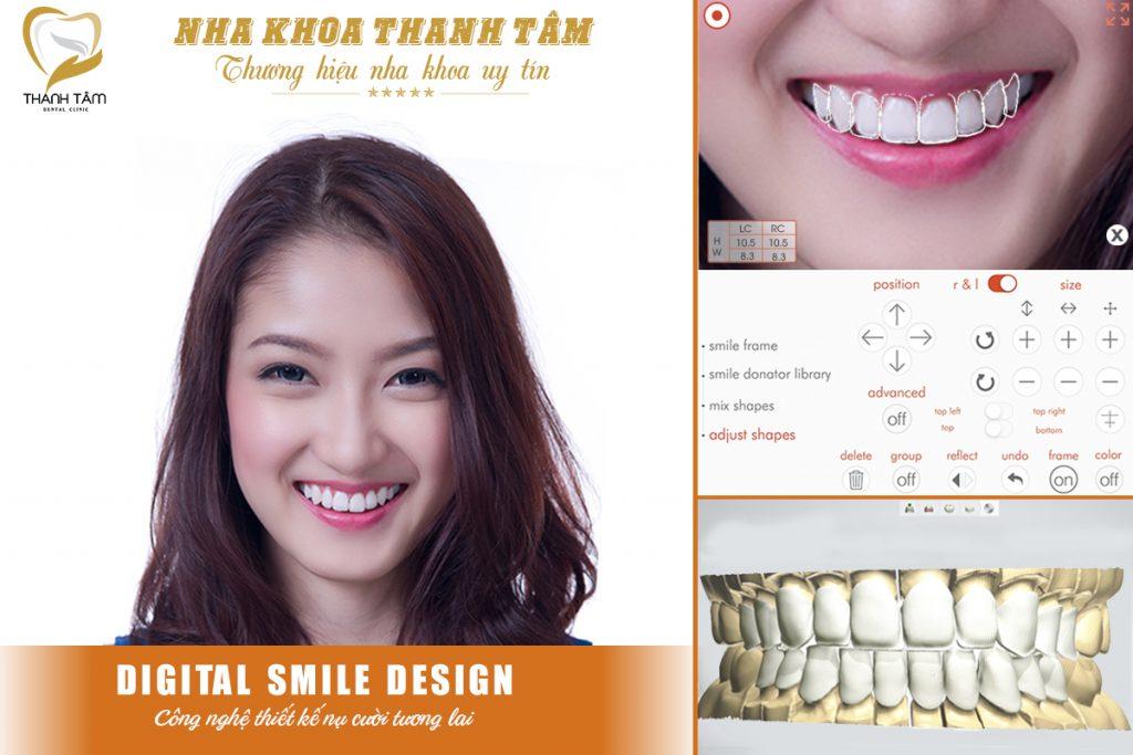 Bọc răng sứ cho răng mọc lệch - Thiết kế nụ cười