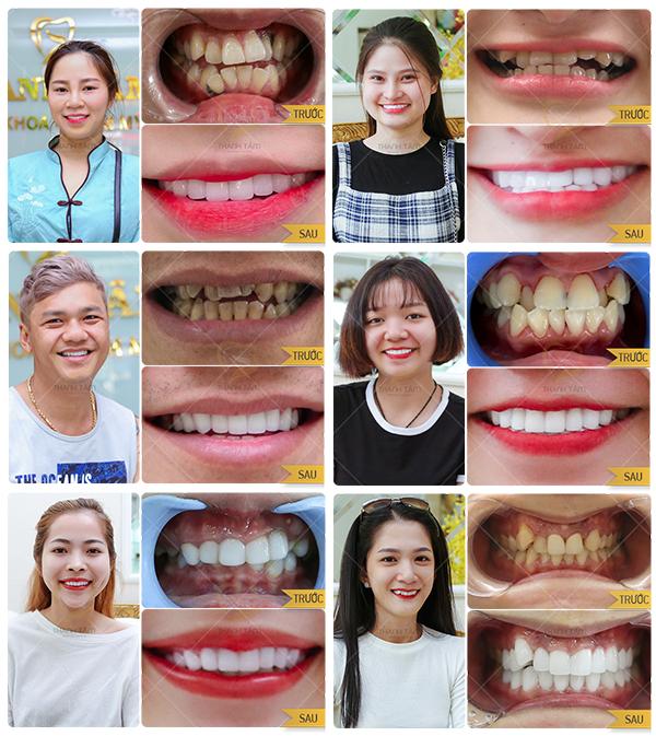 Bọc răng sứ khắc phục răng mọc lệch