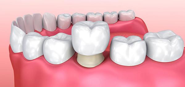 Bọc răng sứ thẩm mỹ cho răng ố vàng