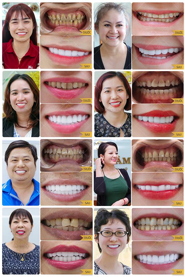 Cách làm trắng răng bị vàng - Hình khách hàng