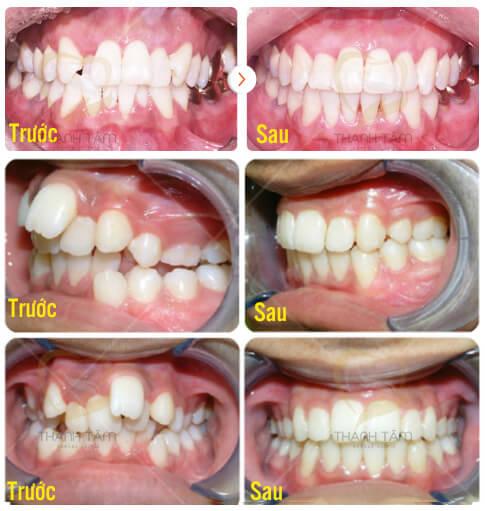 Giải pháp cho răng mọc lệch