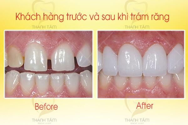 Giải pháp khắc phục răng thưa bằng trám răng thẩm mỹ