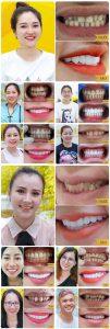 Hình ảnh khách hàng điều trị răng nhiễm Fluor