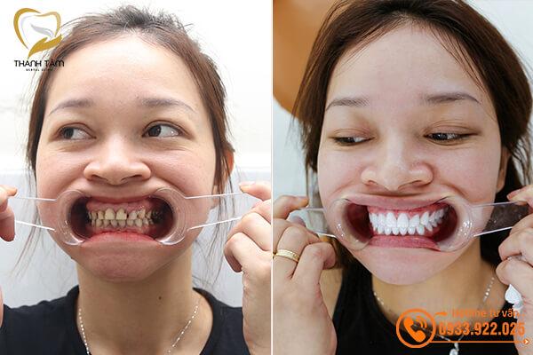 Khách hàng bọc răng sứ khắc phục răng sâu