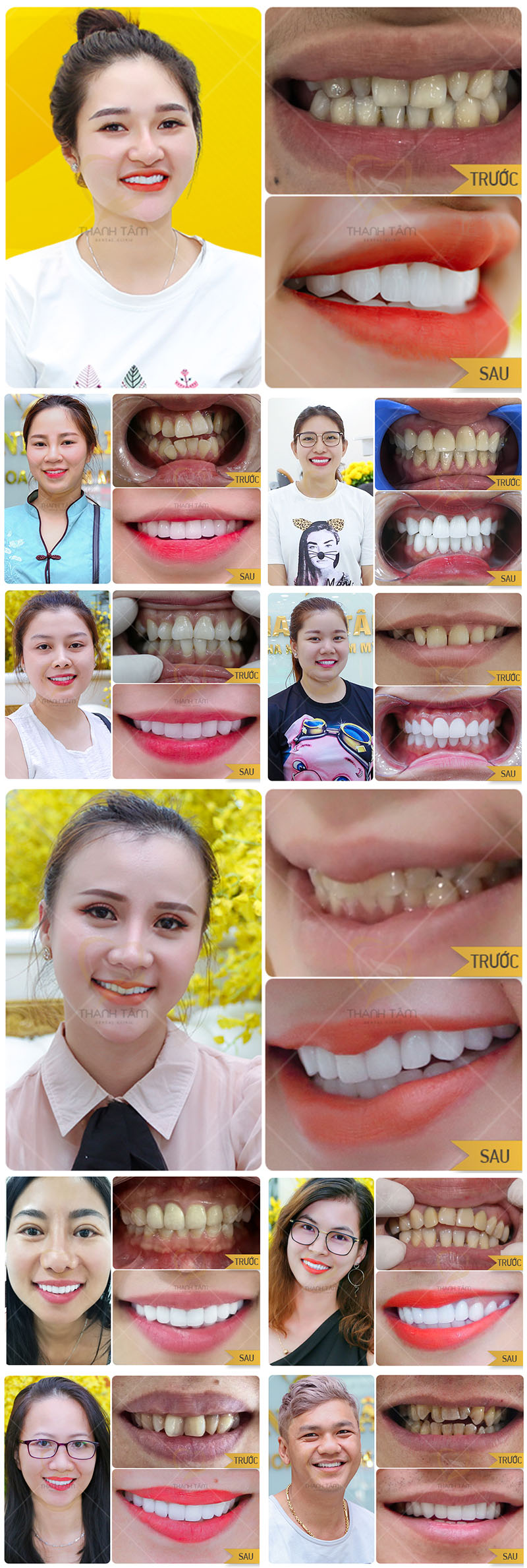 Khách hàng Bọc răng sứ khắc phục răng lệch