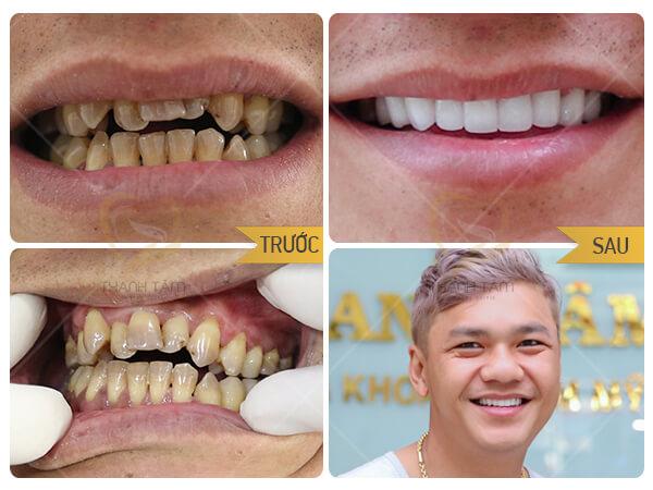 Thẩm mỹ răng sứ toàn diện