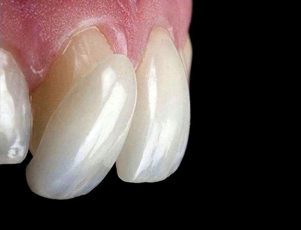 Mặt dán sứ Veneer - Giải pháp hoàn hảo cho răng ố vàng