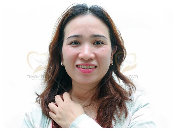 Răng nhiễm Fluor - Hình khách hàng