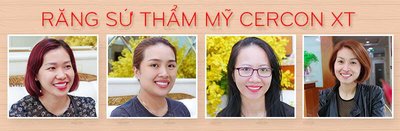 Răng sứ cao cấp Cercon XT