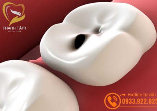 Trám răng sâu có hiệu quả không