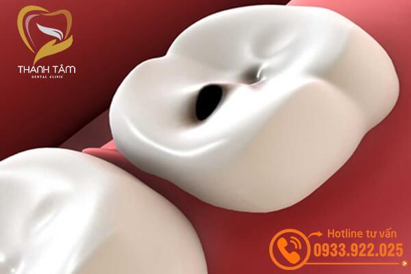 Trám răng sâu có hiệu quả không?