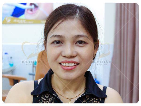 Trường hợp răng nhiễm Fluor điều trị