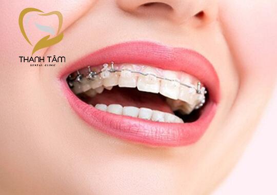 Hình ảnh khách hàng Niềng răng thẩm mỹ