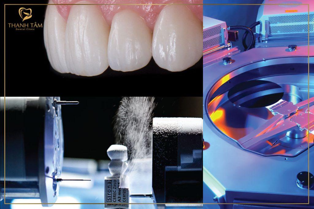 Công nghệ chế tác răng sứ CAD/CAM và trang thiết bị tối tân