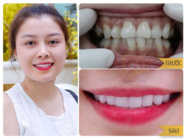 Hình ảnh khách hàng Phủ răng sứ thẩm mỹ