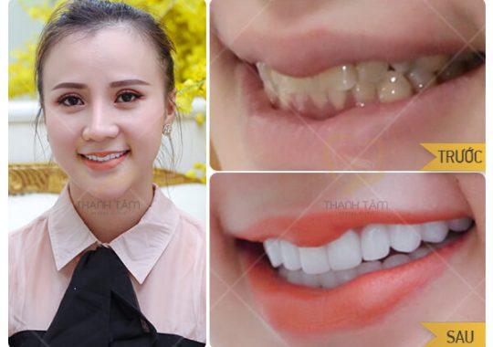 Hình ảnh khách hàng dán sứ Veneer tại nha khoa Thanh Tâm