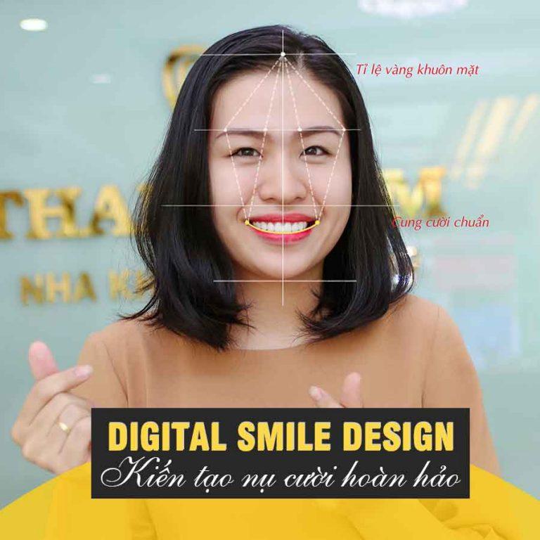Nha khoa thẩm mỹ Thiết kế nụ cười