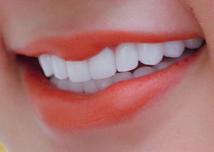 Răng sứ thẩm mỹ - Quy trình kết quả