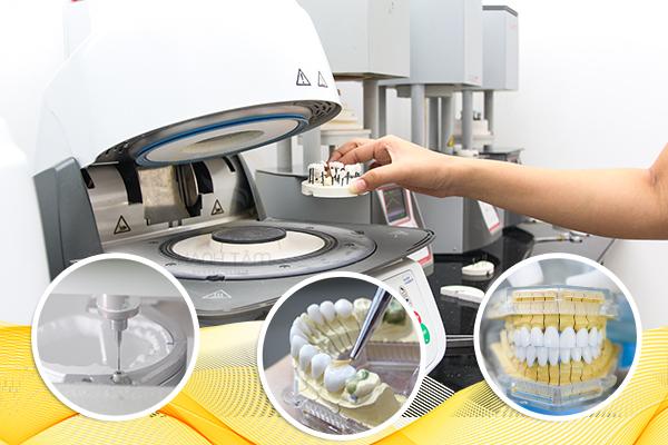 Địa chỉ bọc răng sứ giá rẻ với hệ thống Labor ngay tại nha khoa