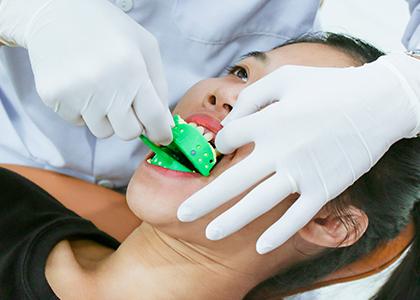 Địa chỉ bọc răng sứ giá rẻ - phân tích và lấy dấu răng