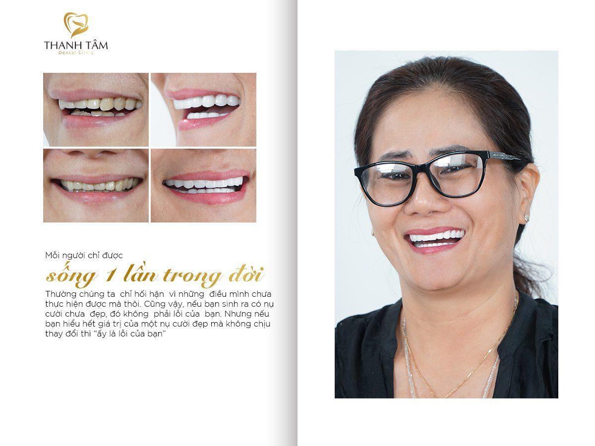 Khách hàng Diễm Thúy Phủ răng sứ Invy Multi 4P khắc phục răng xô lệch