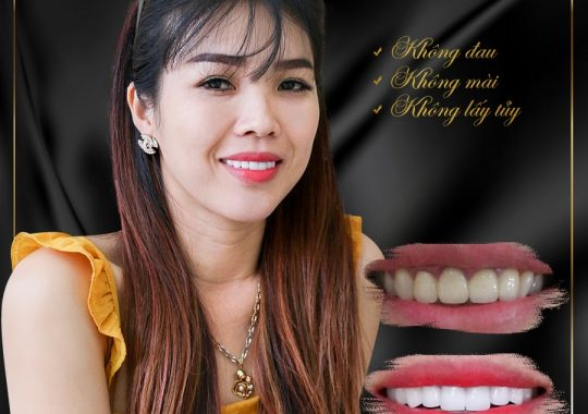 Khách hàng Phủ răng sứ Nguyễn Thị Thuỳ Trang