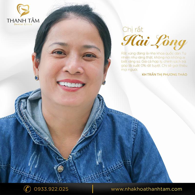 Chị Trần Thị Phương Thảo phủ răng sứ Invy Multi 4P chữa răng lệch, ố vàng