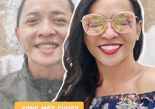 Phủ răng sứ thẩm mỹ Invy Multi 4P - Khách Hồ Phước Hậu