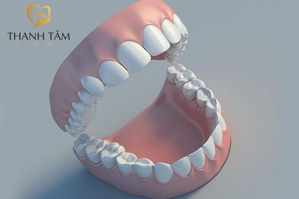 Răng người có 32 chiếc