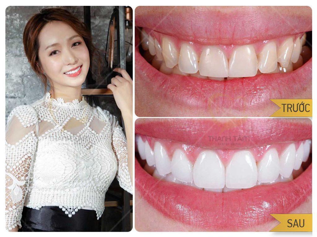 Thẩm mỹ răng sứ cho nụ cười hoàn hảo