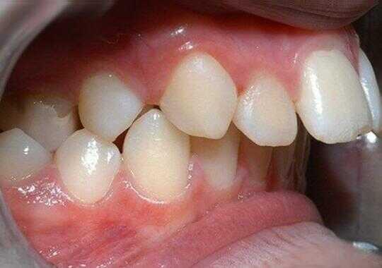 hô răng và hô hàm