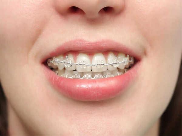 Đeo niềng răng khắc phục răng hô xấu