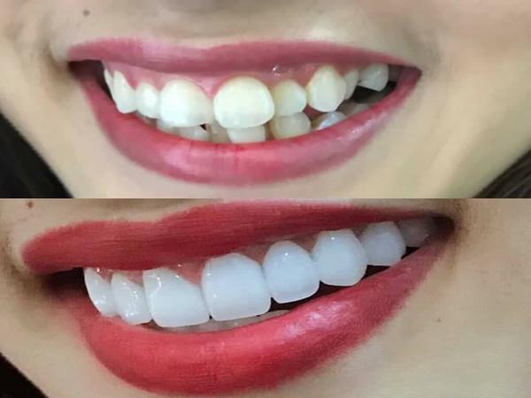 Bọc răng sứ răng hô xấu