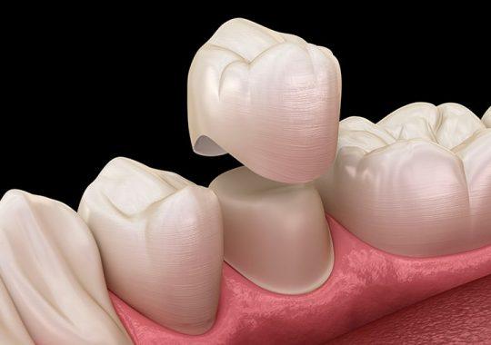 Làm răng sứ có ảnh hưởng gì không