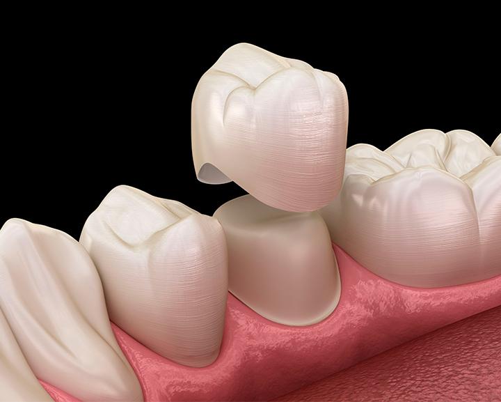 Bịt răng sứ có đau không ? Có để lại biến chứng không ?