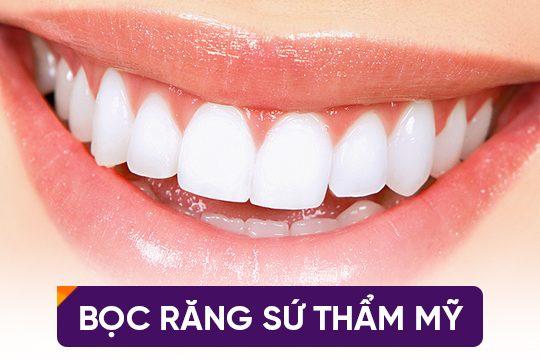 Bọc răng sứ bao lâu thì ăn được ?