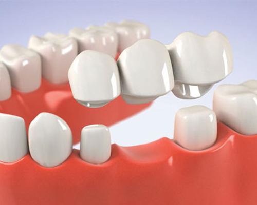 Bọc răng sứ có ăn uống bình thường được không