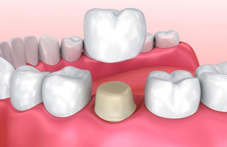 Bịt răng sứ là gì