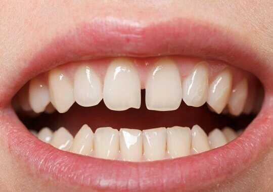 Răng thưa thì nên làm gì?