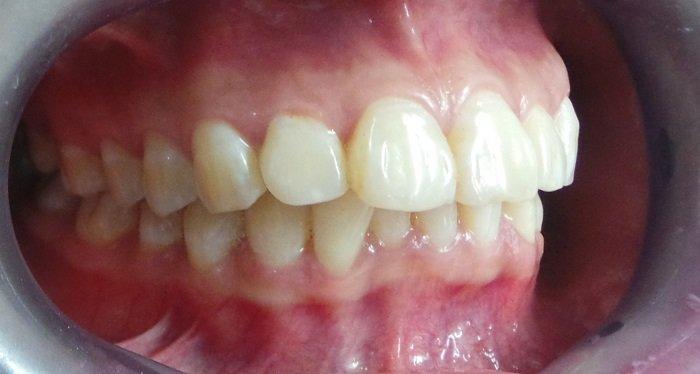 răng hô ảnh hưởng như thế nào