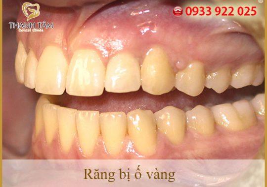 răng ố vàng phải làm sao
