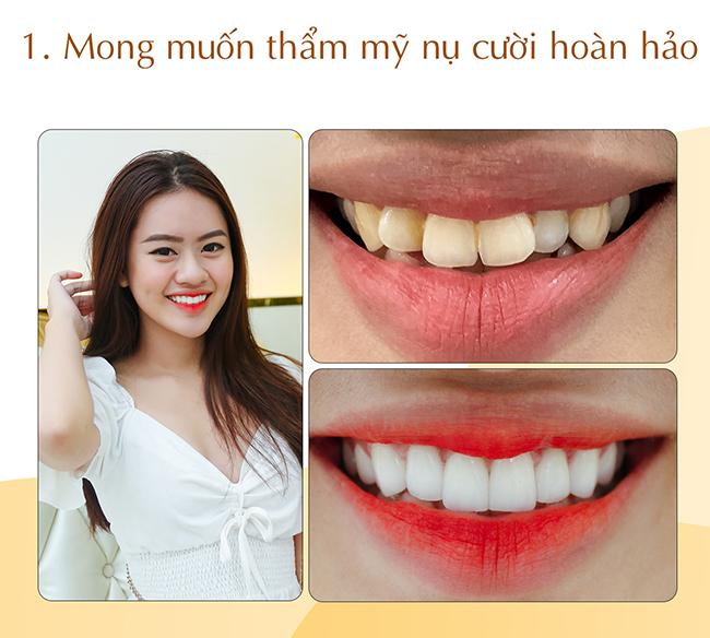 Thẩm mỹ răng sứ đem lại nụ cười hoàn hảo