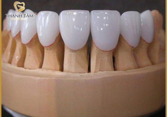 răng sứ Zirconia và Cercon
