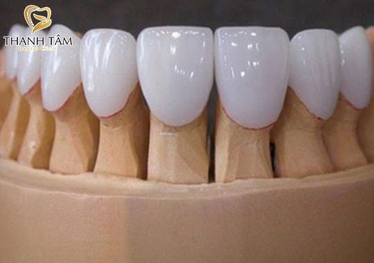 răng sứ Zirconia Đức