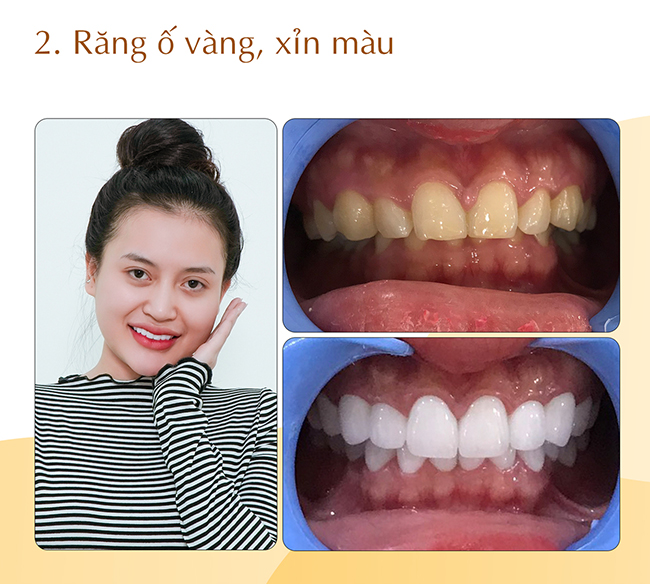 Răng ố vàng xỉn màu Nha khoa Thanh Tâm